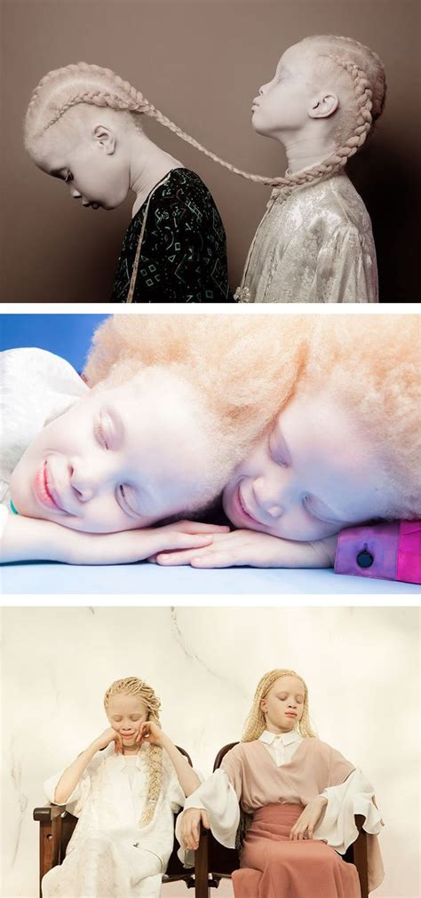 11 Year Old Twins With Albinism Are Taking The Fashion