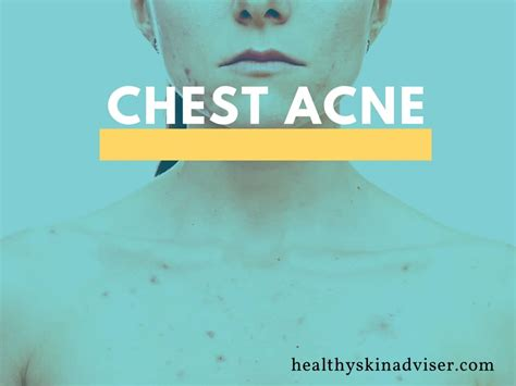 How To Get Rid Of Chest Acne Causes And Treatments