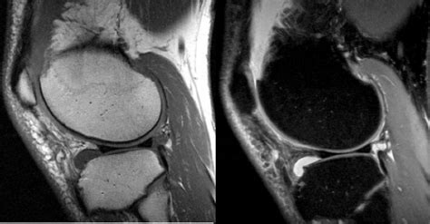 Proton Density Weighted Mri by Musculoskeletal Mri Mri Research Bmr