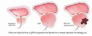 Настойка прополиса и подмора от простатита