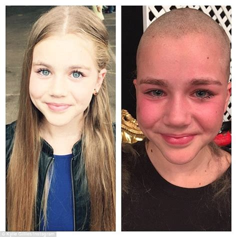 sydney girl   shaved hair  cancer patients
