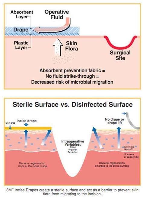 steri drape steri drape sterile surgical drape sheets by 3m