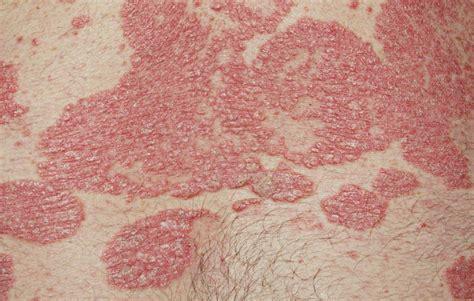 skin conditions  vagina womens health