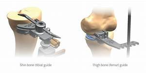 Partial Knee Replacement With Navio Robotic Assistance