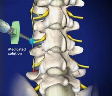 head neck  spine pain treatments jacksonville tampa
