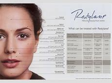 Restylane Facial Fillers in Midtown NYC – Bio Skin Laser NYC