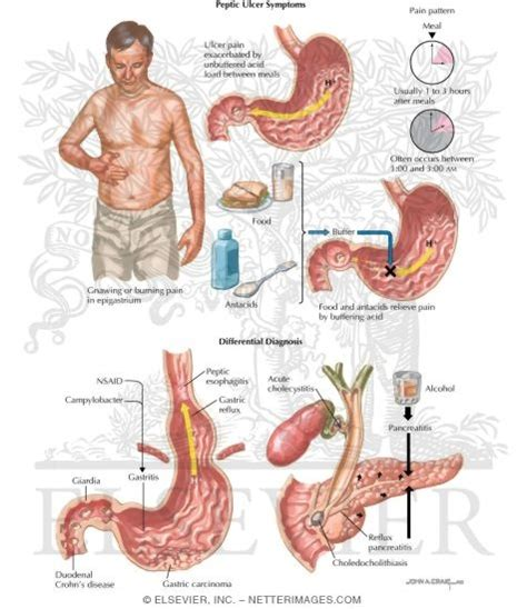 Peptic Ulcer Symptoms And Differential Diagnosis. Kettering Hospital Dayton Ohio. Active Trading Platform Locksmith Martinez Ca. Domain Registrar Reviews Cnet. Johns Hopkins Business School Ranking. Kansas City Criminal Lawyer Java Error 1723. Carpet Stores In Raleigh Nc Ips Phone Number. Identity Access Management System. Auto Body Shops In Sacramento