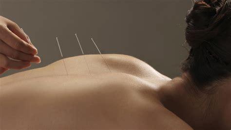 acupuncture pour maigrir l acupuncture pour maigrir mythe ou r 233 alit 233