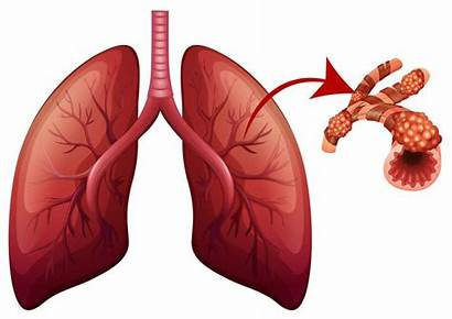 Lungs Illustration Magnified Lung Vector Sad Happy