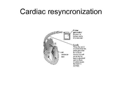 Discover premium difibrillator defibrillator on alibaba.com at amazing discounts and offers. Pacemakers and Implantable Defibrillators Worldwide