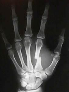 제 2-5 수지 중수골 골절(2nd~5th metacarpal fracture) : 손바닥에 큰 충격을 ...