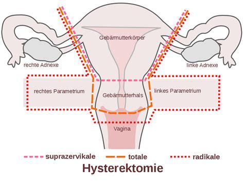filescheme hysterectomy desvg wikimedia commons