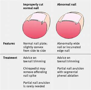 Partial Ingrown Toenail Removal Aftercare