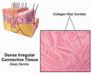 Dense Irregular Connective Tissue