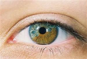 What is Central Heterochromia? | Healthmad.com