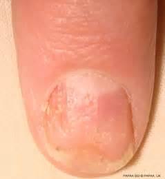 Psoriatic Arthritis Psoriasis Nail
