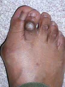 What Bunions Look Like On Feet