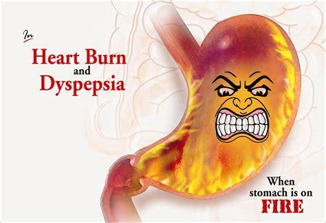 Dr Thankis Acidity Capsule For Hyper Acidity Vishla