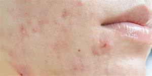 Hormonal Acne  5 Signs You U0026 39 Re Dealing With It U2014and How To