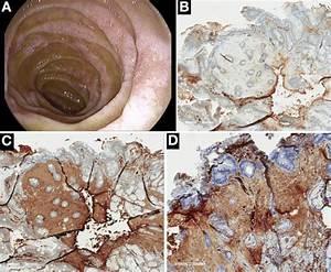 Duodenal Scalloping Indicate Waldenstr U00f6m Macroglobulinemia