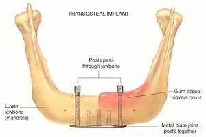History of Dental Implants   News   Dentagama