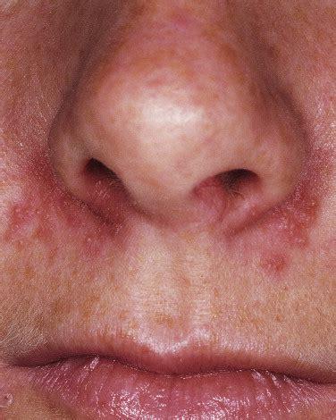 herpes nasale interno herpes nasale infiammazione naso infiammazione