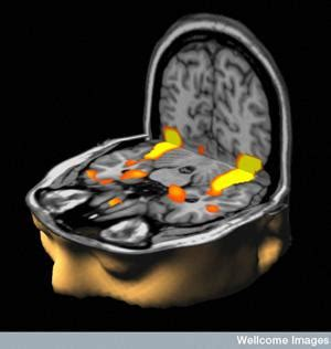 fMRI Can Visualize Dopamine Activity Directly in the Brain