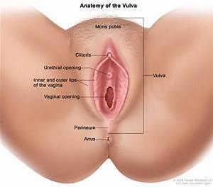 Vulvar Cancer Treatment  Pdq U00ae  U2014patient Version