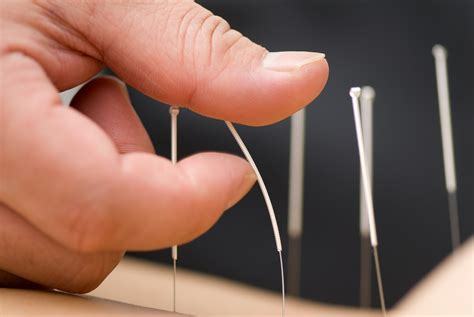 Xeljanz Arthritis Drug Cures Baldness! Well, One Time