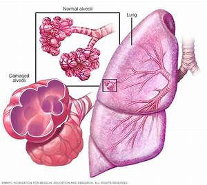 Copd - Symptoms And Causes