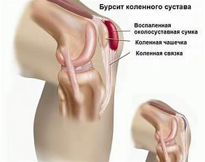 Лекарство для лечения артрита и артроза