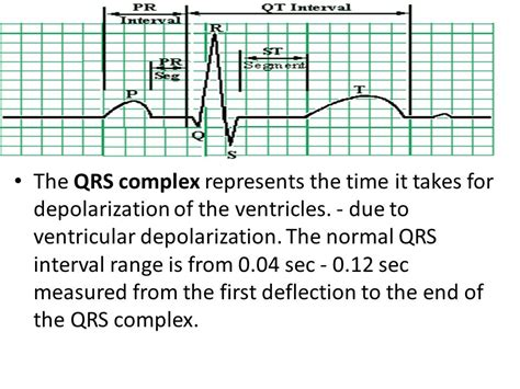 pr normal range qrs duration normal range 28 images hemodynamic monitoring ppt cardiac arrhythmia ppt unc