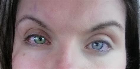 eye color changing surgery changed color after corneal crosslinking for