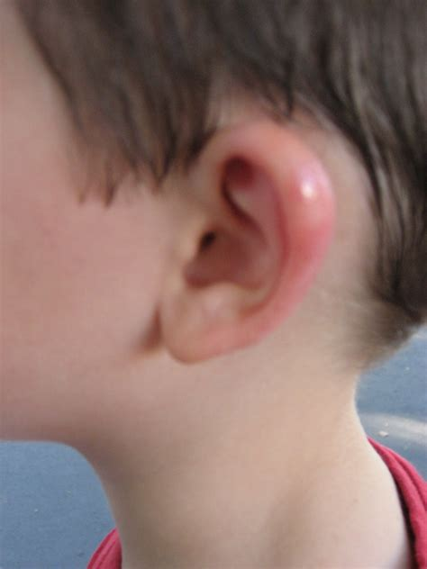 Image Gallery Ear Swelling