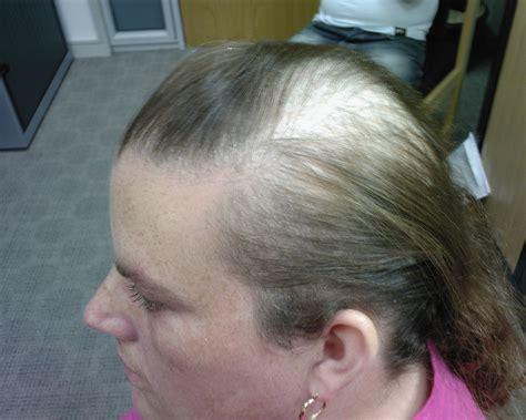 hair centre hair loss  treated