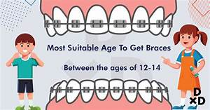 A Complete Dummies U0026 39  Guide To Braces In Singapore  2019