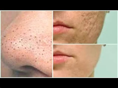 fast  easy    rid  large pores  younger