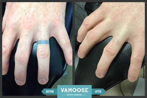 finger tattoo removal chicago il vamoose