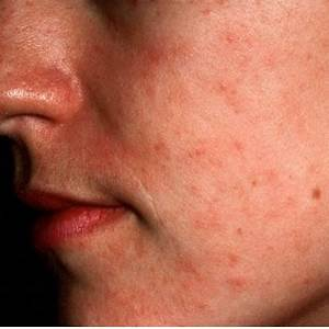 An Organic Shield From Atopic Dermatitis With Glowysy Dermatitis