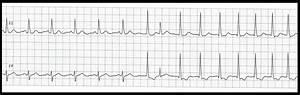 Float Nurse: EKG Rhythm Strip Quiz 164