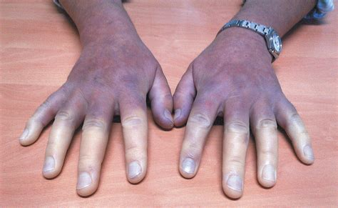 Woman With Raynauds Syndrome A Rare Condition That Causes