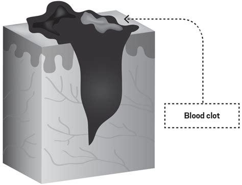 How Heal Prevent Skin Injuries Climbing Magazine