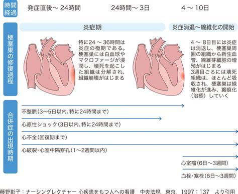 心筋 梗塞 合併 症