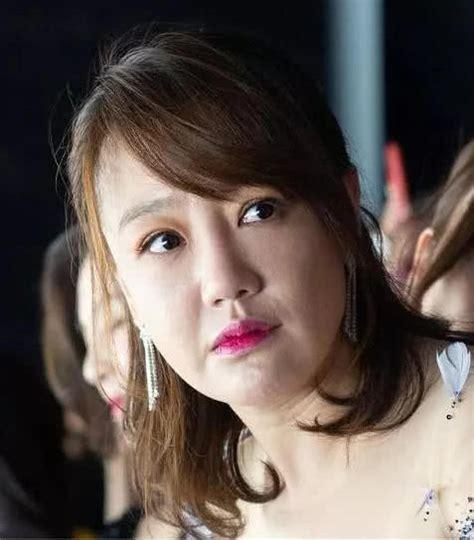 40岁薛佳凝颜值崩塌,鼻子变大脸僵奇怪,跟路人合照都被秒杀_照片