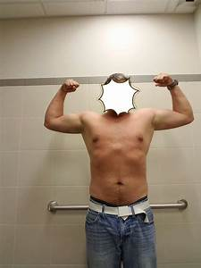 Gyno Or Bodyfat