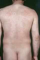 hautausschlag hiv infektion bilder