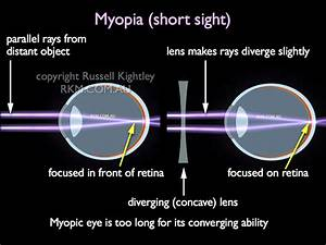 Learn Physics Without Tears  Human Eye  Its Defects And
