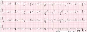 Dr  Smith U0026 39 S Ecg Blog  Chest Pain And A  U0026quot Normal U0026quot  Ecg