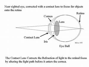 Re  How Do Contact Lenses Adjust Eye Sight