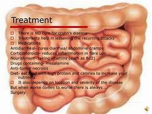 PPT - Crohn's Disease PowerPoint Presentation - ID:4954621